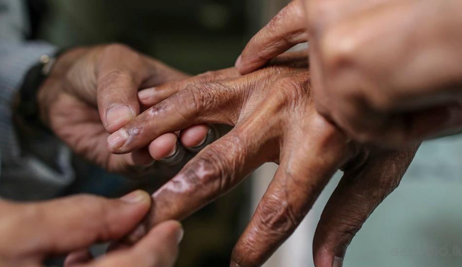 Leprosy hand